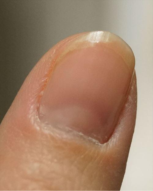 ネイル工房 爪先から剥がれる