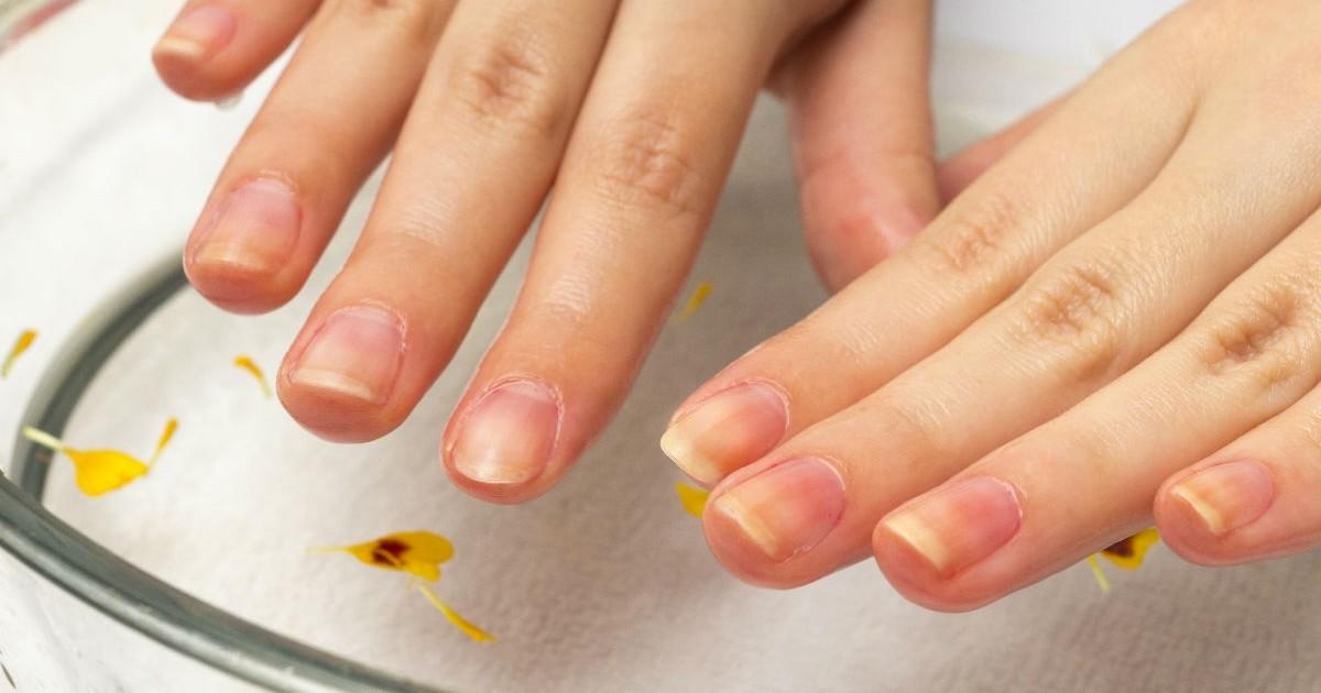 爪が割れる、二枚爪。爪を強化してネイルを思いっきり楽しむ方法とは